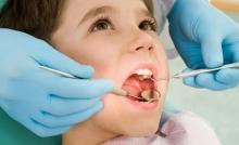 Поставят безплатно силанти на зъбите  на деца от 5 до 8 години  и в област Разград