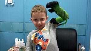 5-годишно момче с ръка-робот вече може да прегърне братчето си