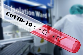 713 са потвърдените случаи на COVID-19 у нас